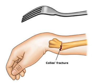 6 Proven Exercises to Heal Your Colles' (Wrist) Fracture