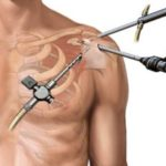 Must Know Knowledge: Rotator Cuff (Shoulder) Surgery
