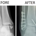 What to do With a Broken Ankle [Updated-2019]
