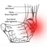 An Ankle Sprain: Do I Really Need Physiotherapy?