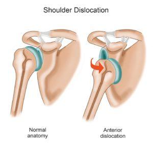 shoulder dislocation diagram