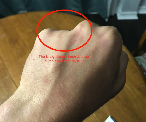 significant knuckle drop
