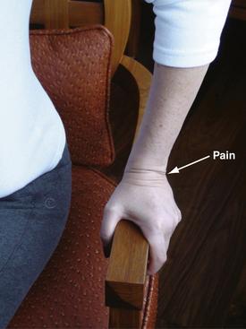 TFCC injury symptoms